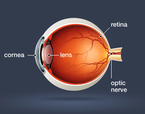 Hereditary Cataract